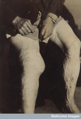 Deformity of the knee in Charcot's disease. © Wellcome Images/St Bartholomew's Hospital Archives & Museum.