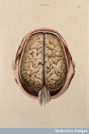 Brain dissection, seen from above. © Wellcome Library, London.